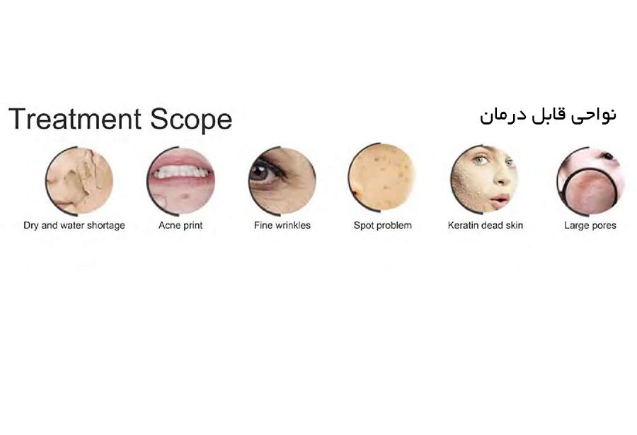 H2o2-aqua-facial-pluse-before-&-after